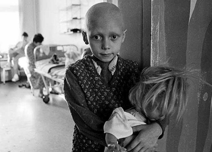 Ребенок Чернобыля